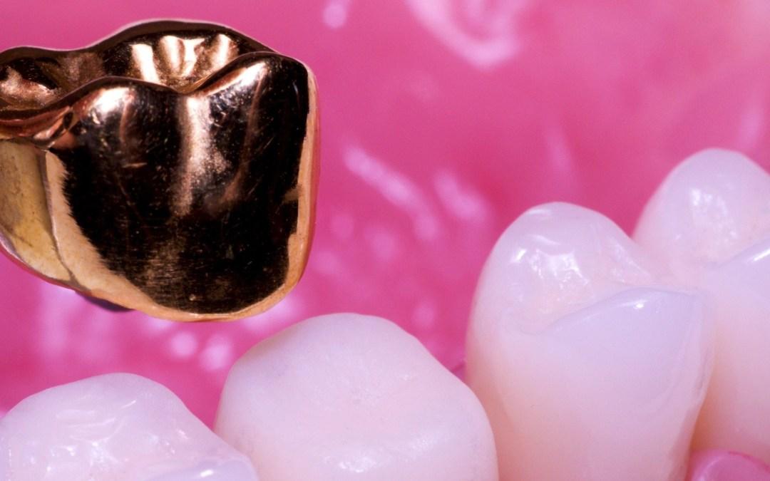 Kelebihan dan Kekurangan Materi Penambal Gigi dari Emas