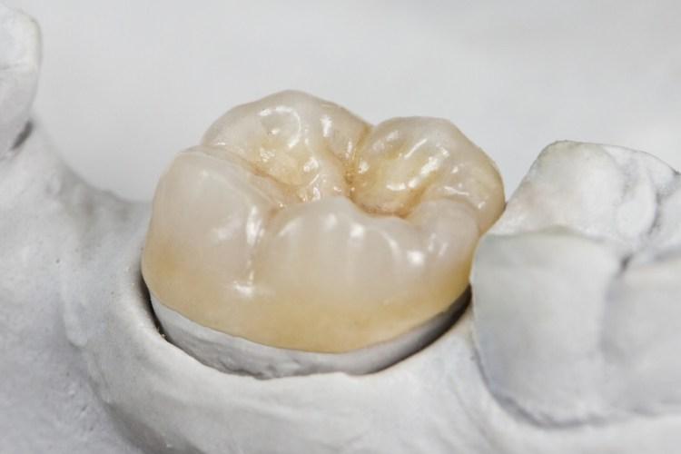klinik gigi depok