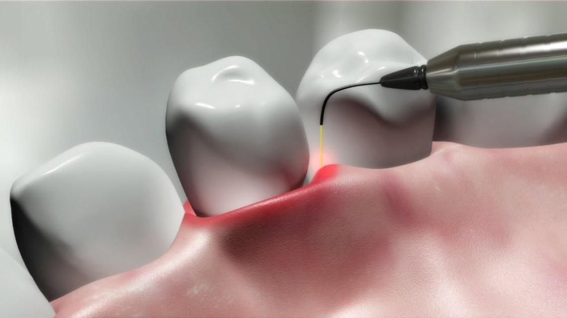 klinik gigi bandung