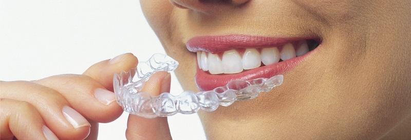 klinik gigi bandung masalah penyelarasan ortodontik