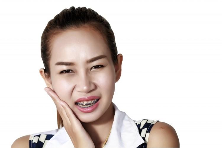 dokter gigi jakarta perbedaan behel asli dan palsu
