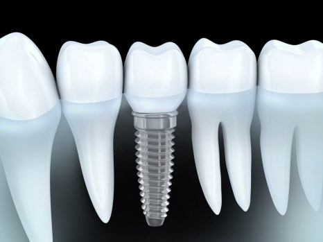 Implant- Global Estetik Dental Care