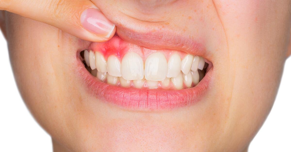 Cara Mengobati Gusi Bernanah- Global Estetik Dental Care