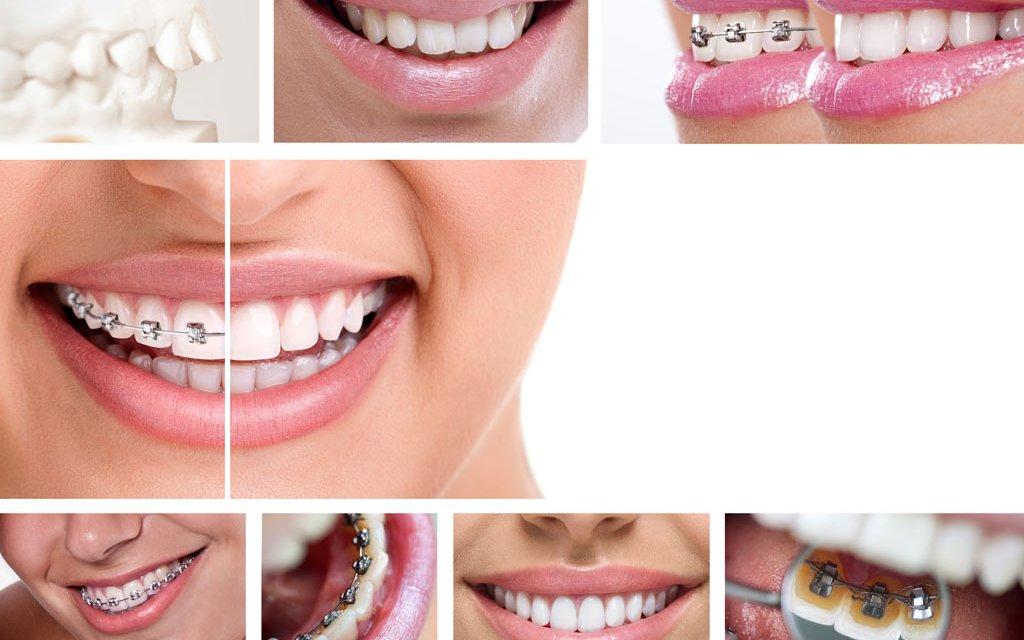 dokter gigi depok retainer behel trend aksesoris terbaru untuk merapikan gigi