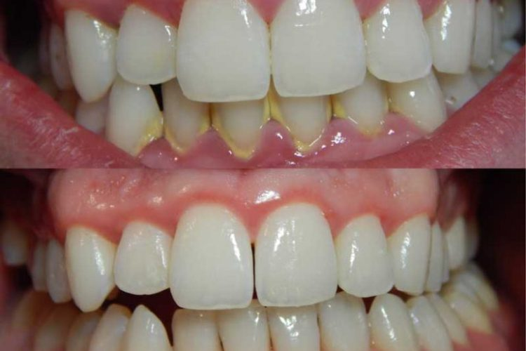 klinik gigi jakarta menghilangkan karang gigi secara alami