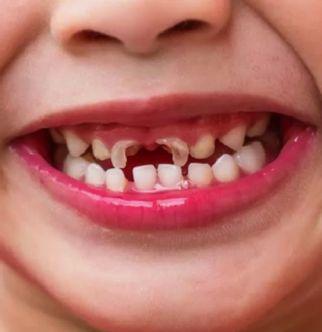 Pemeriksaan karies gigi secara visual-Global Estetik