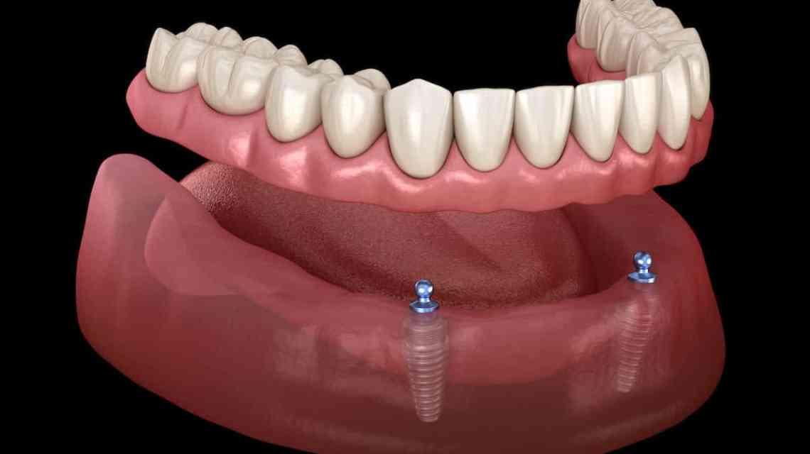 dokter gigi bandung pengganti gigi palsu