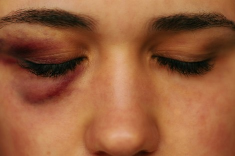 I Was Bashed by a Bouncer in Turkey