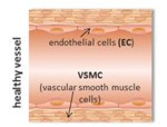 Indirubin-3'-monoxime exerts a dual mode of inhibition towards leukotriene-mediated vascular smooth muscle cell migration
