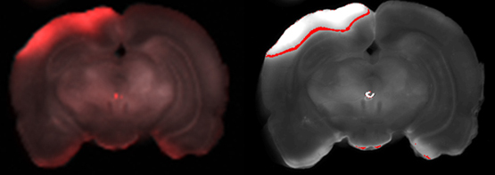 Far-red tracer analysis of traumatic cerebrovascular permeability