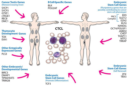 Ectopic expression of cancer testis and embryonic stem cell genes in Cutaneous T-Cell lymphoma. Global Medical Discovery