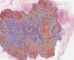 Digital pathology and image analysis in tissue biomarker research
