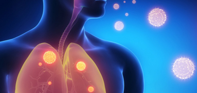 Mast cells protect against Pseudomonas aeruginosa-induced lung injury.. Global Medical Discovery