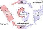 Mutant p53 promotes epithelial-mesenchymal plasticity and enhances metastasis in mammary carcinomas of WAP-T mice - Global Medical Discovery