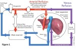 Subnormothermic ex vivo liver perfusion reduces endothelial cell and bile duct injury after donation after cardiac death pig liver transplantation - Global Medical Discovery