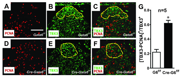 GATA-binding Factor 6 Contributes to AV Node Development and Function. Global Medical Discovery