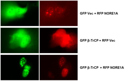 Ras regulates SCF-beta-TrCP activity and specificity via its effector NORE1A. Global Medical Discovery