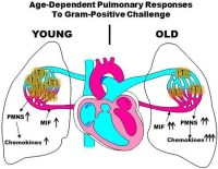 Age-dependent alterations in the inflammatory response to pulmonary challenge. Global Medical Discovery