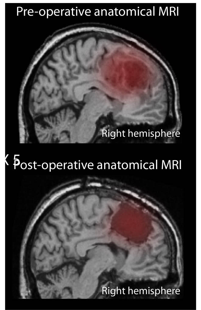 unilateral medial frontal cortical lesion impairs trial error learning without visual control. Global Medical Discovery