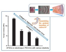 Modulation of the gene expression of annulus fibrosus-derived stem cells using poly(ether carbonateurethane)urea scaffolds of tunable elasticity. Global Medical Discovery