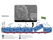 Hyperphosphatemia, Phosphoprotein Phosphatases, and Microparticle Release in Vascular Endothelial Cells. Global Medical Discovery