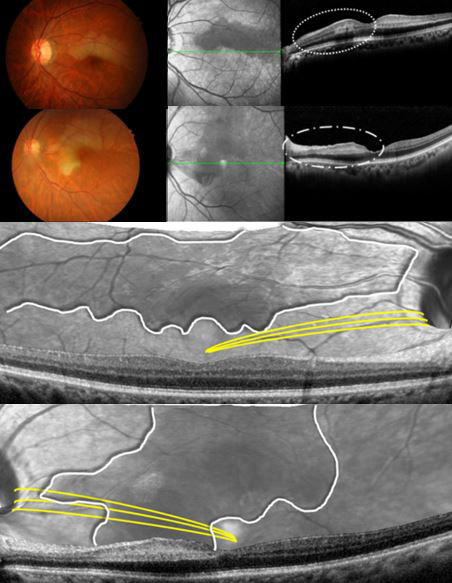 Ischemic Injury of Papillomacular Bundle Is Predictive Marker of Poor Vision in Eyes With Branch Retinal Artery Occlusion. Global Medical Discovery