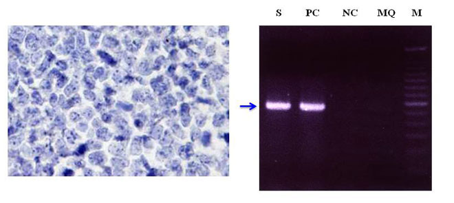 Establishment and characterization of a novel VEGF-producing HHV-8-unrelated PEL-like lymphoma cell line,OGU1. Global Medical Discovery