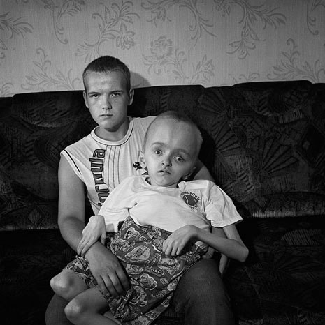 Chernobyl Victims Global Radiological Catastrophe