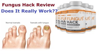 Fungus hack supplement review