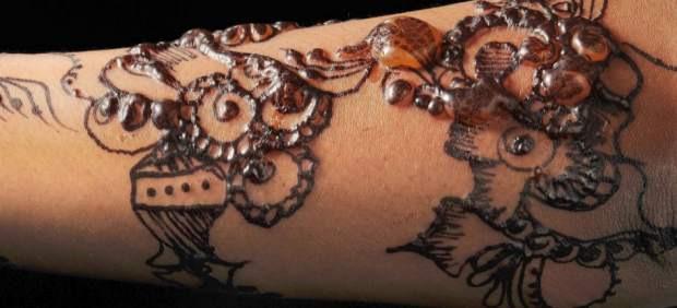 Un Tatuaje De Henna Desfigura El Brazo De Una Niña De Siete Años