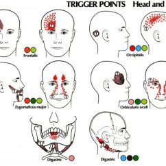 Face Pressure Points Diagram Omron 24vdc Relay Wiring Migraine Surgery Produces Dramatic Functional Improvements