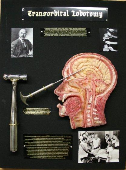 inside skull diagram craftsman lt2000 solenoid wiring lobotomy | glogarcia29