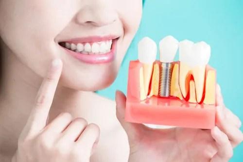 Dental-Prosthodontics