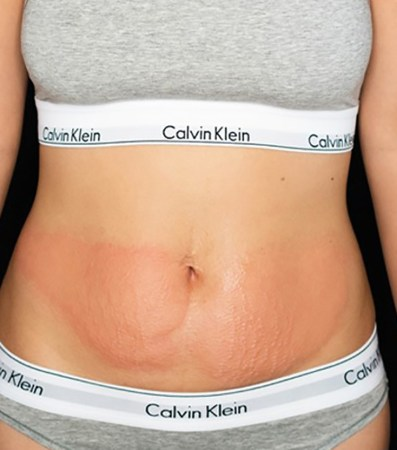 CryoSlimming after 5 treatments