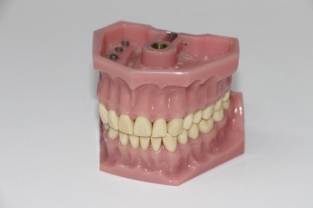 False teeth aka dentures