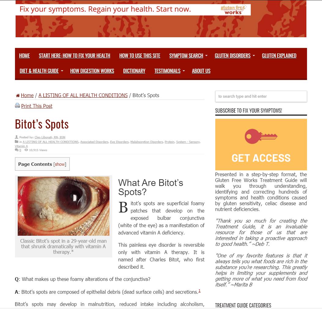 Easy Bruising Due To Vitamin K Deficiency In Celiac