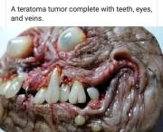 teratoma tumor demonic mass