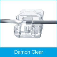 damon clear bracket e1506986079121