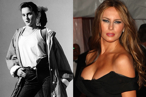 Melania-Trump-Denies-Plastic-Surgery.jpg