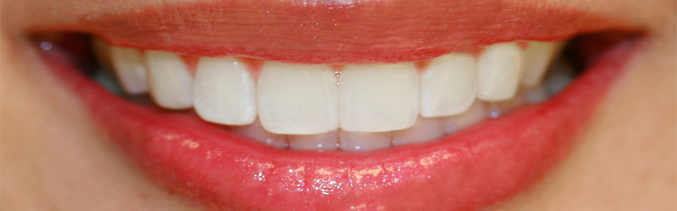 White Teeth and Healthy Mouth – Naturally!