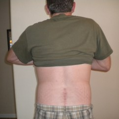 Best Chair After Lower Back Surgery Unusual Sashes Week 24  Photo Of L4 L5 Fusion Scar 5 Months Still