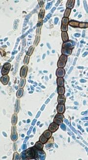 Aureobasidium pullulans. © Dr. David Ellis, The Univerisity of Adelaide.