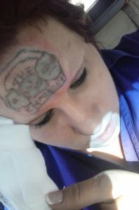 Tabitha West tattoo removal