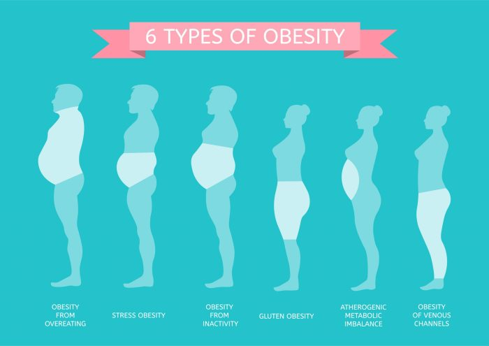 Types of obesity