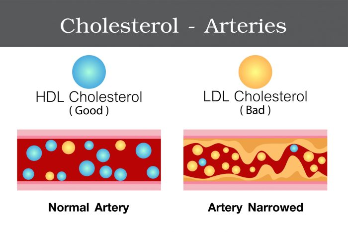 Effects of HDL and LDL fractions of cholesterol