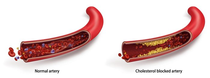 Effects of increased cholesterol