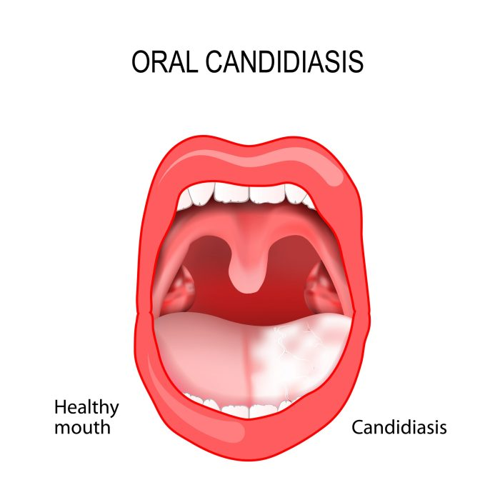Oral Candidiasis - one of the symptoms of systemic mycosis