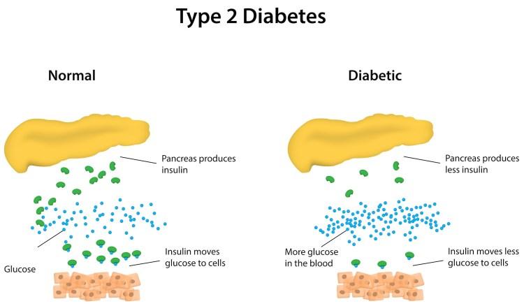 Type 2 diabetes explained