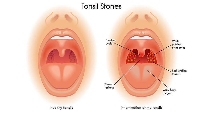 How to remove tonsil stones you can't see
