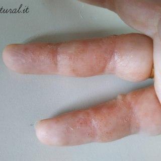 disidrosi eczema disidrosico mani